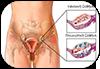 Σύνδρομο πολυκυστικών ωοθηκών | Ενδοκρινικές διαταραχές - παθήσεις